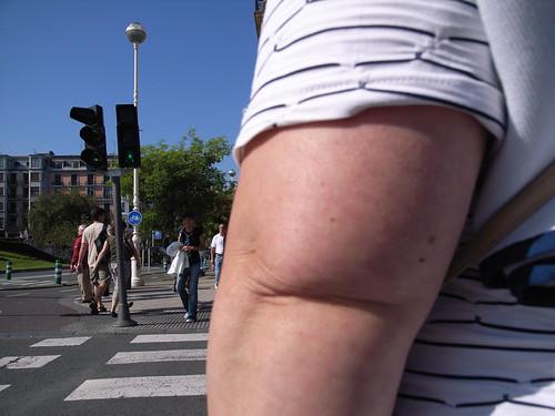 Fat Elbow 103