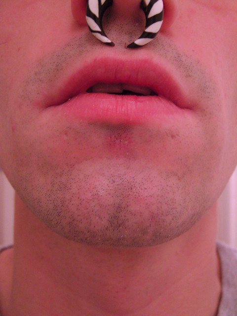 labret piercing scar - photo #18