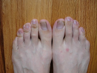 what my feet looked like after the Portland Marathon | by drewish