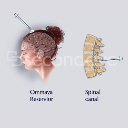 Intrathecal Injection An Illustration For An Interactive