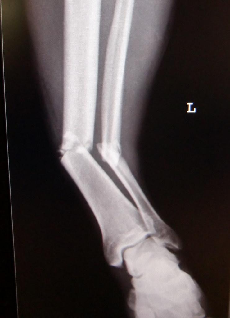 Tibia and fibula fracture / Unterschenkelfraktur | Picture o… | Flickr