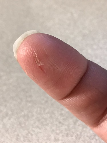 Sliced Open My  Finger