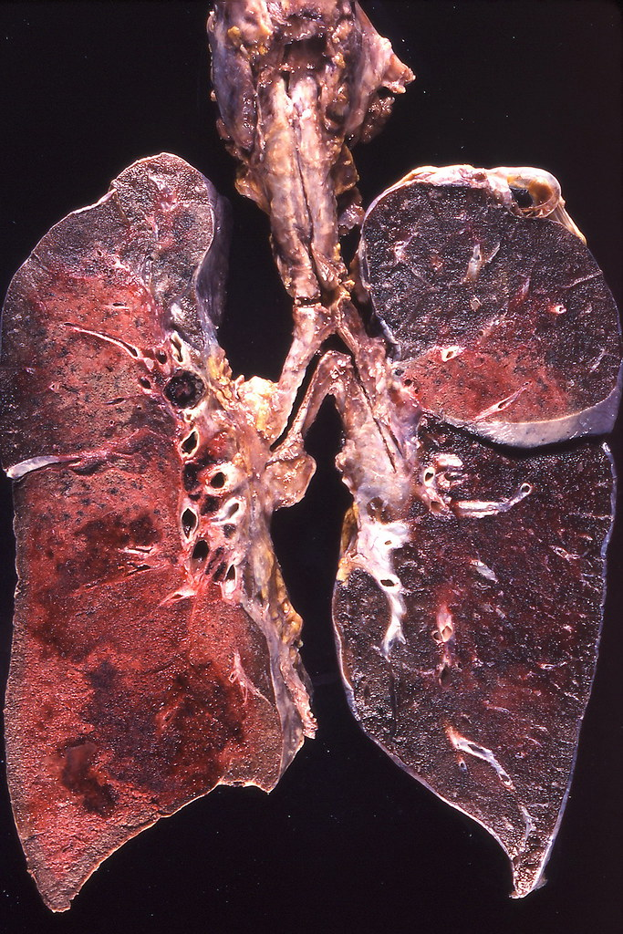 Lobar pneumonia, hemorrhagic | Yale Rosen | Flickr