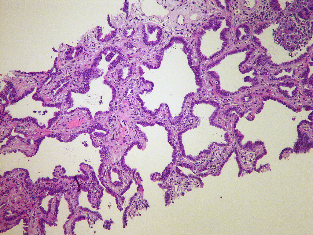 Image Result For Lung Cancer New