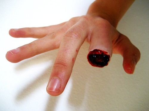 how to treat a deep knife cut on finger