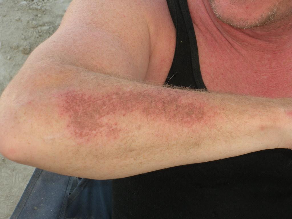 Rug Burn | By Civilized Explorer Rug Burn | By Civilized Explorer