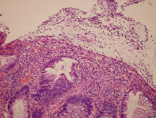 Inflammatory cap polyposis | by Pathology Outlines