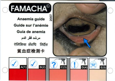 Anaemia Coughing Up Black Coffee