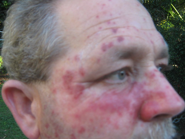 Home Use Topical Anethesia