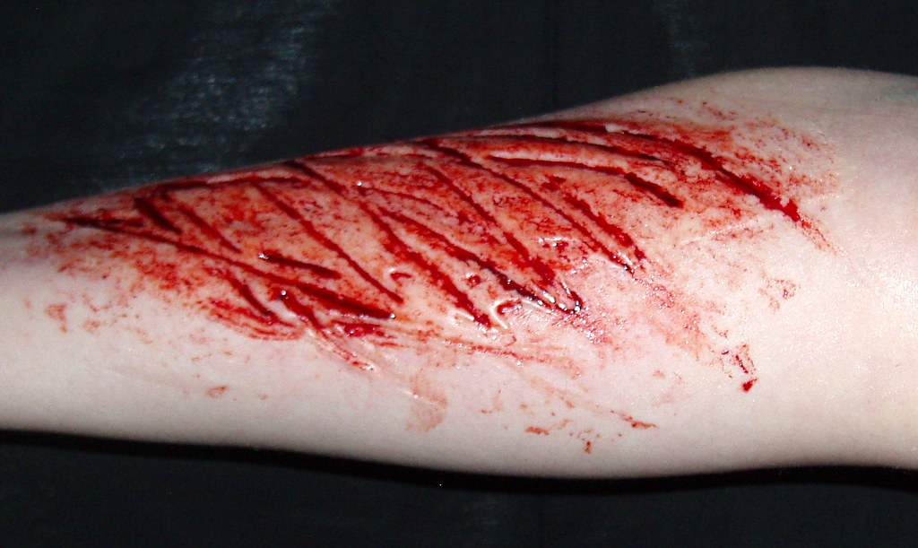 Image Gallery Sliced Arm