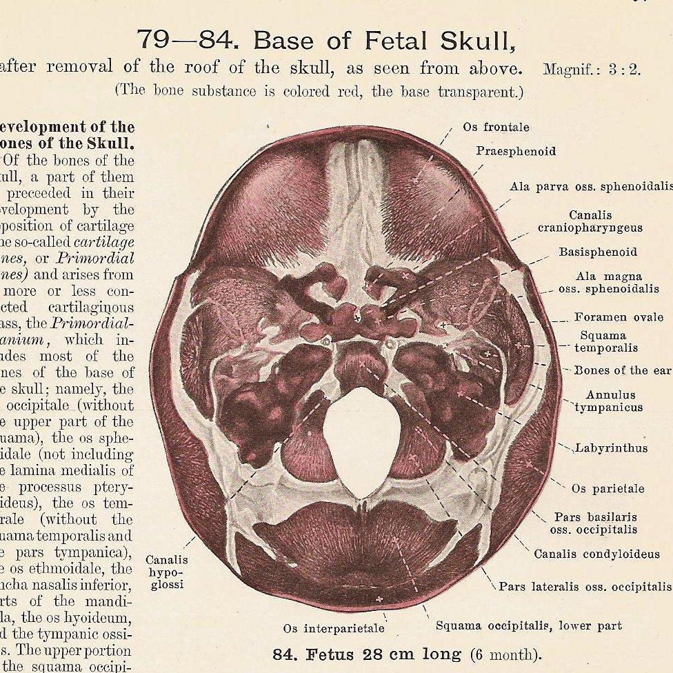 All sizes | Base of FETAL Skull, Occipital Squama and Occipital Bone ...