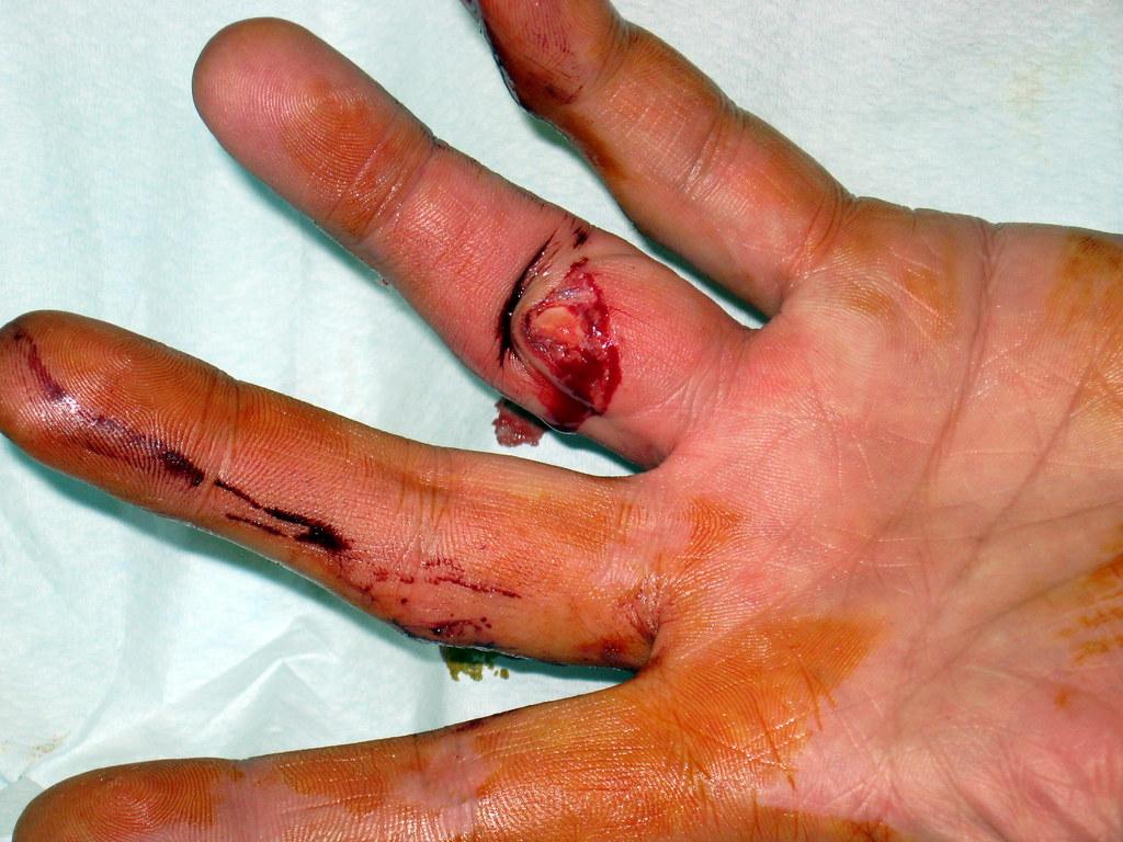 Bone sticking out, dislocated at knuckle. | 23/11/09 Got ...  Bone sticking o...