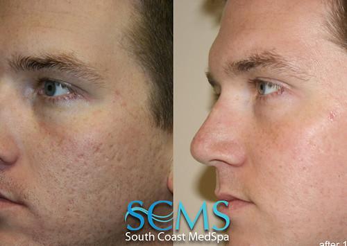 Laser Acne Scar Removal Results Laser Acne Scar Removal