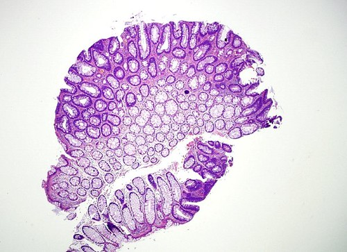 Qiao U0026 39 S Pathology  Colon