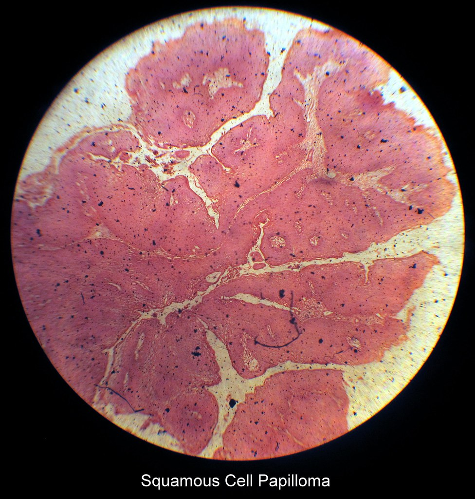 About >> Squamous Cell Papilloma | Albaraa Mehdar | Flickr