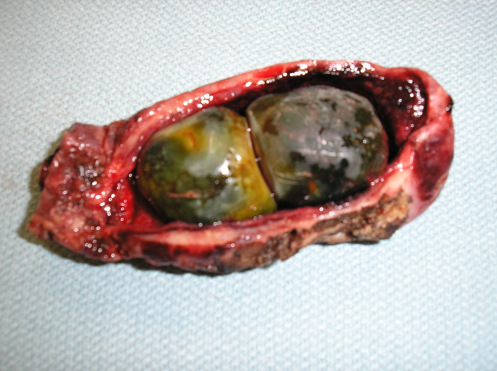 Qiao's Pathology: Two pigment gallstones(乔氏病理学:胆囊和胆色素结石 ...