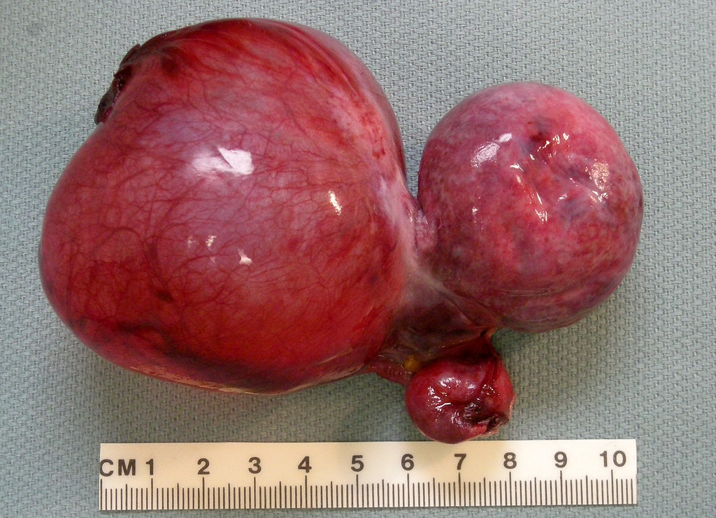radiological guidelines for ovarian cysts