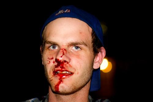 Bill cosby beat up a midget video