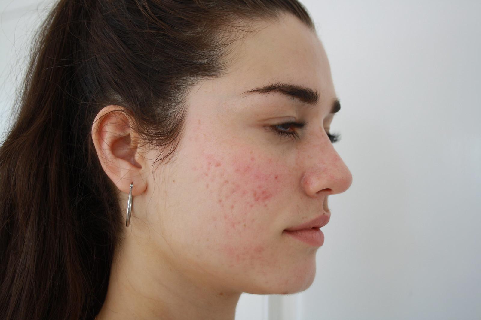 Ilirida før 1. klinikbeh Serum 8 Dermapen.hø.. kind acnear