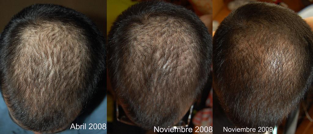 proscar pelo