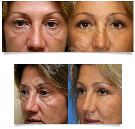 Fat Transfer To Face Shapiro Plastic Surgery