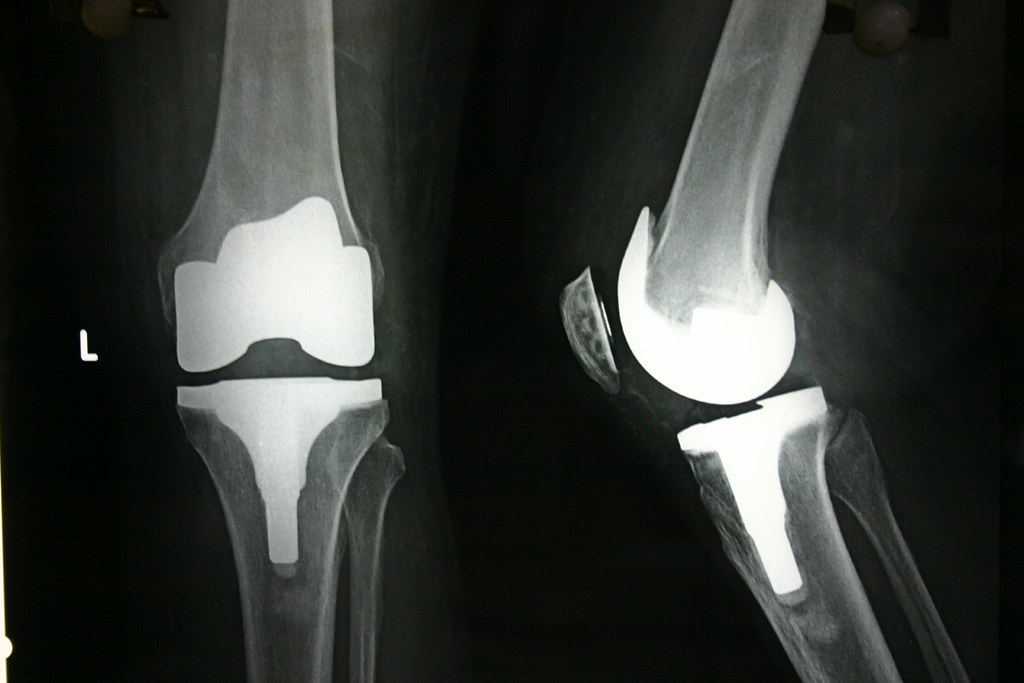 journey oxinium knee replacement post op x ray of a. Black Bedroom Furniture Sets. Home Design Ideas