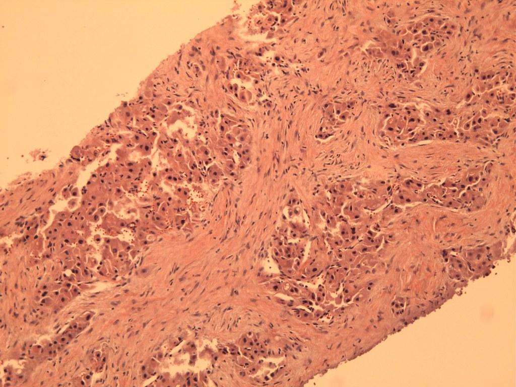 Case 161   See case at www.pathologyoutlines.com/caseofweek ...