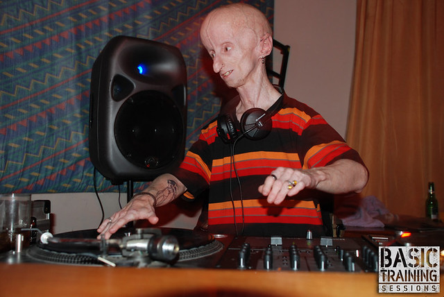 187 Inspiration Leon Botha Progeria Victim South African