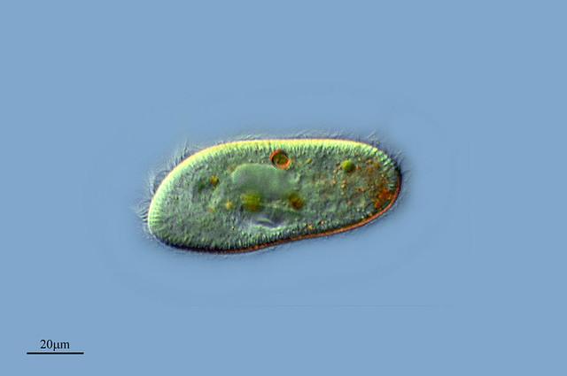 Un Paramecio Limpiador  Paramecium Trichium