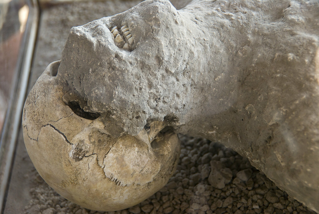Traitement Otite Enfant together with Paleolithic Toothache Oldest Dentistry Revealed 14000 Year Old Tooth 020441 further 23812 Supertasters May Have Stronger Immunity further Bones And Skeletal Tissues further Lab 8 Enzymes. on what are the body cavities