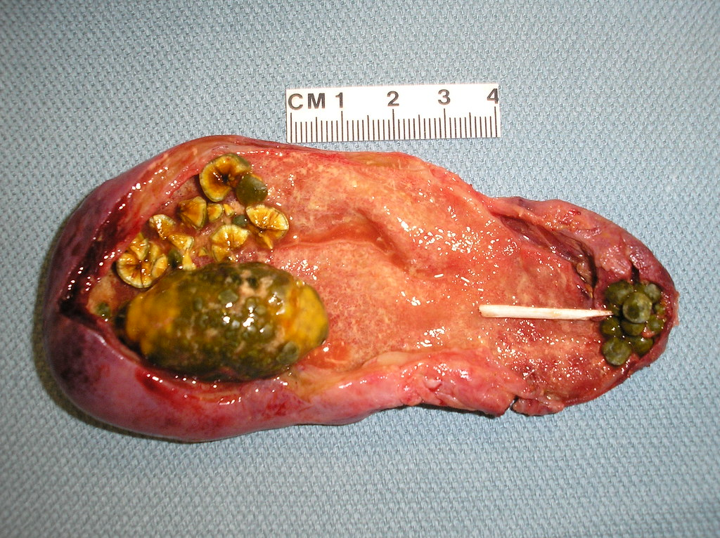 Qiao's Pathology: Mixed cholestrol and pigment gallstones ...