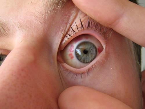 Супер ласик операция на глаза