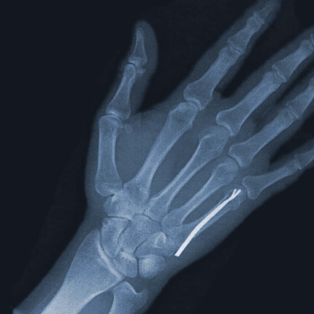 Metacarpal Fracture | Back from Seoul, but still no pics and… | Flickr
