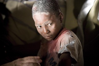 Injured child | by British Red Cross.