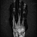 model actress fashion x ray hand photojournalism war photography and just plain strange dark evil unusual negative sandwich composite controversial dark sexy and completely new!