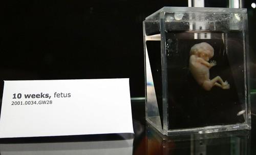 fetus at 10 weeks human fetus at 10 weeks old at the natio flickr