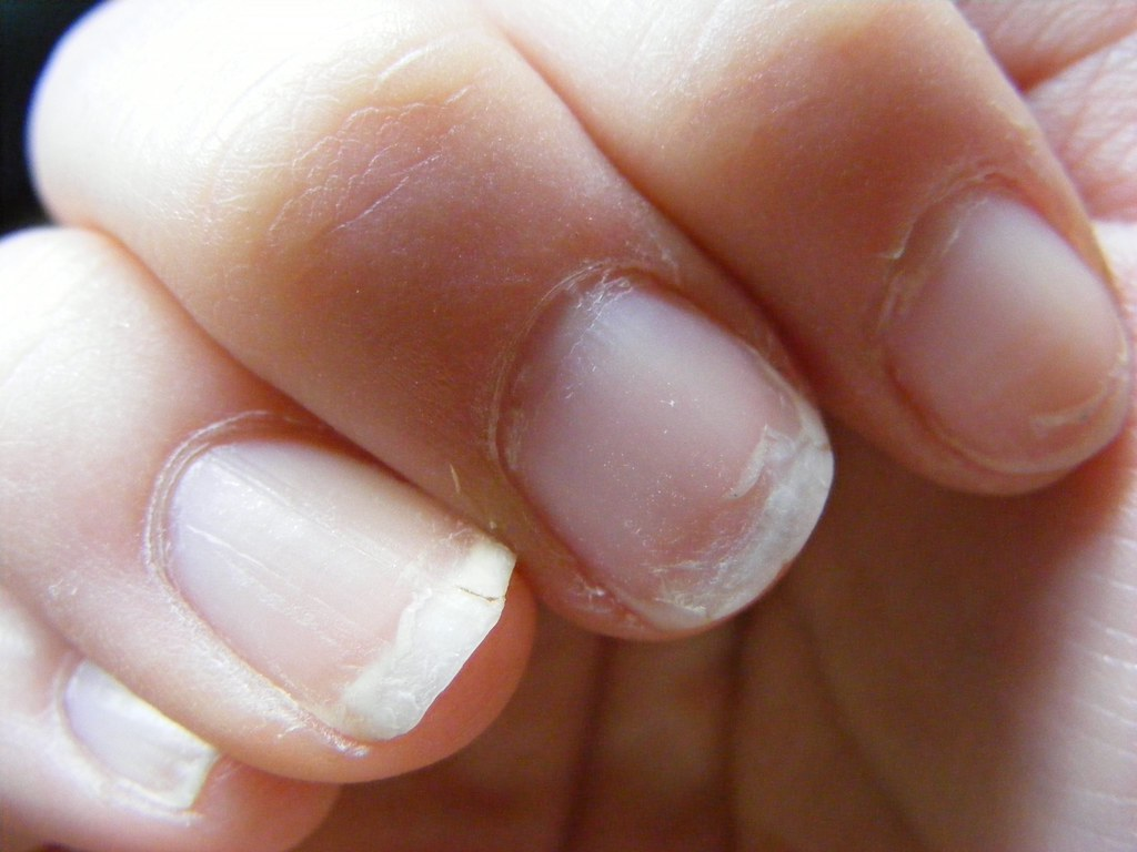 How To Fix A Broken Nail At Home With And Without Glue