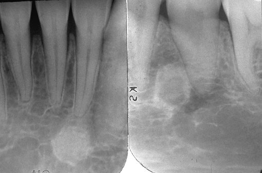 Cementomas And Periapical Cemento Osseous Dysplasia
