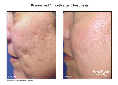 Fraxel Before Amp After For Acne Scars On Face Cosmopolitan