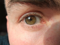 My right eye