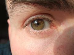 My right eye