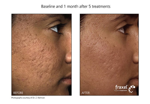 Fraxel before & after for acne scarring on face: Cosmopoli