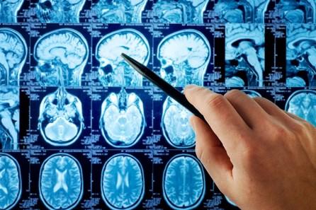 Bagaimana Gejala Penyakit Kanker Otak