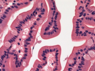 Small intestine-normal (duodenum) | by Pathology Outlines