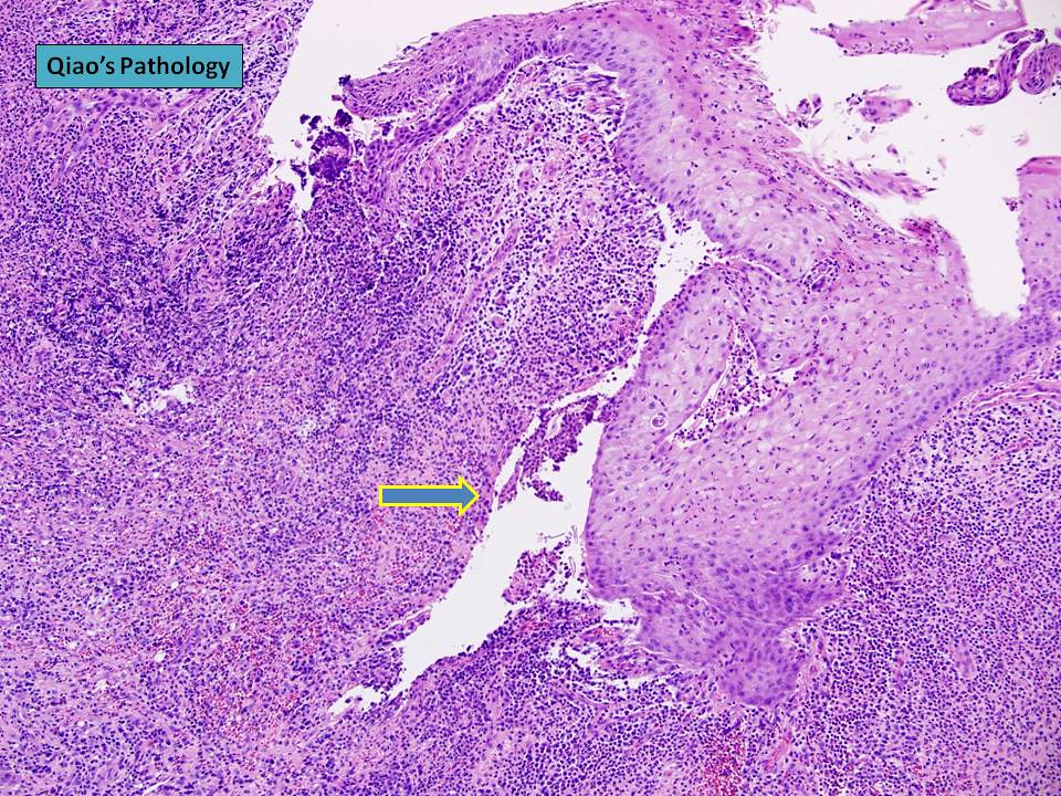 Qiao S Pathology Subareolar Breast Abscess 乔氏病理学:乳晕下乳腺脓肿