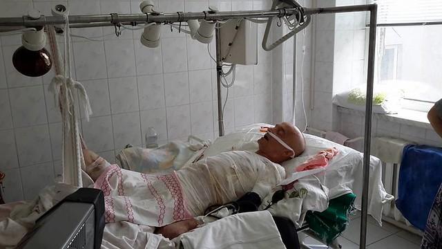 Радивилівчанин, який постраждав від вибуху котла, потребує термінової допомоги