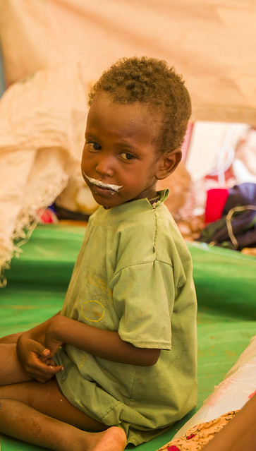 A boy is being treated for a severe malnutrition at a UNICEF supported stabilization centre