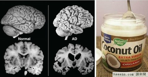 A-Man-Had-2-Tbsp-Coconut-Oil-2-Times-per-Day-in-2-Months.-His-Brain-Changed