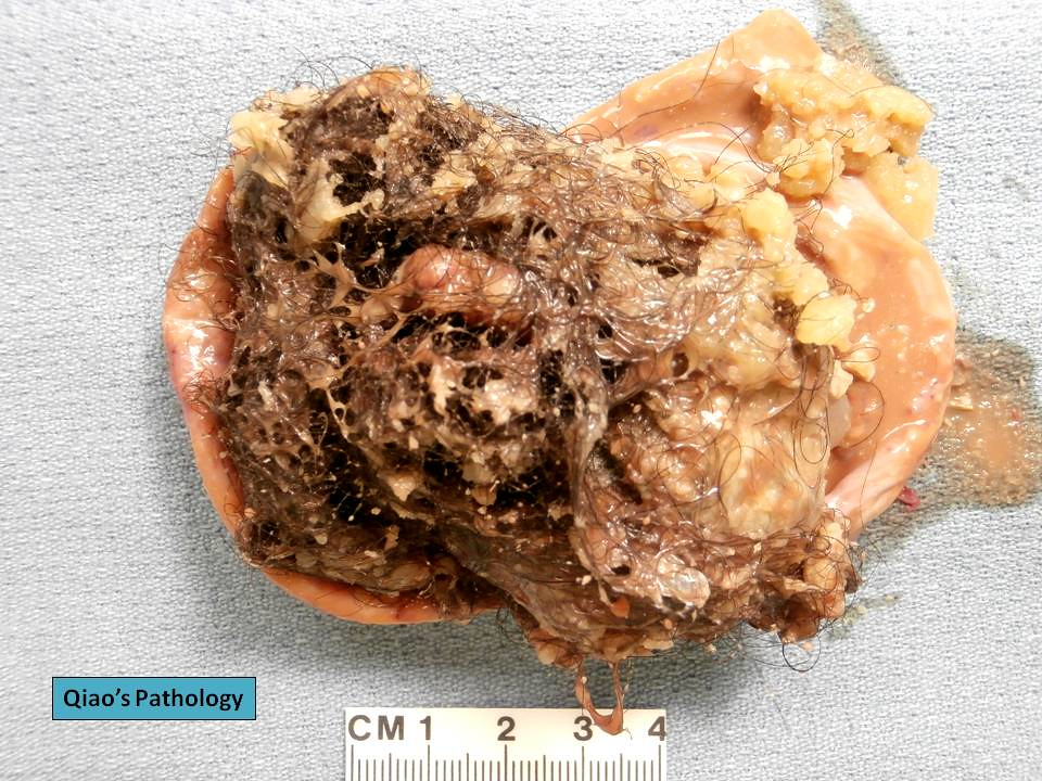 ovarian cyst Teratoma