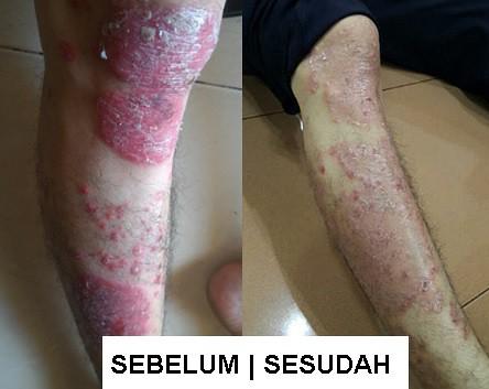 Obat Psoriasis Paling Ampuh